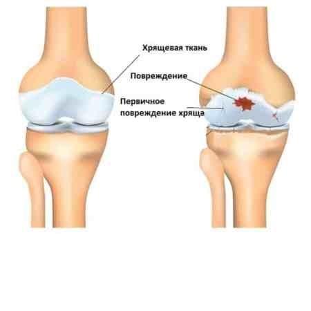 Фенотипическая  классификация остеоартрита
